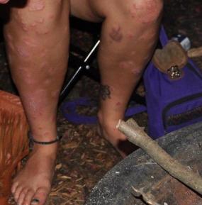 larger-psorasis-legs
